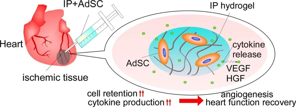 New stem-cell-carrying hydrogel could help the heart recover from myocardial ischemia