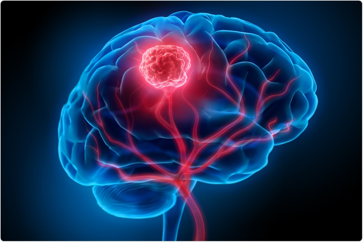 Study: Microengineered perfusable 3D-bioprinted glioblastoma model for in vivo mimicry of tumor microenvironment. Image Credit: peterschreiber.media/ Shutterstock