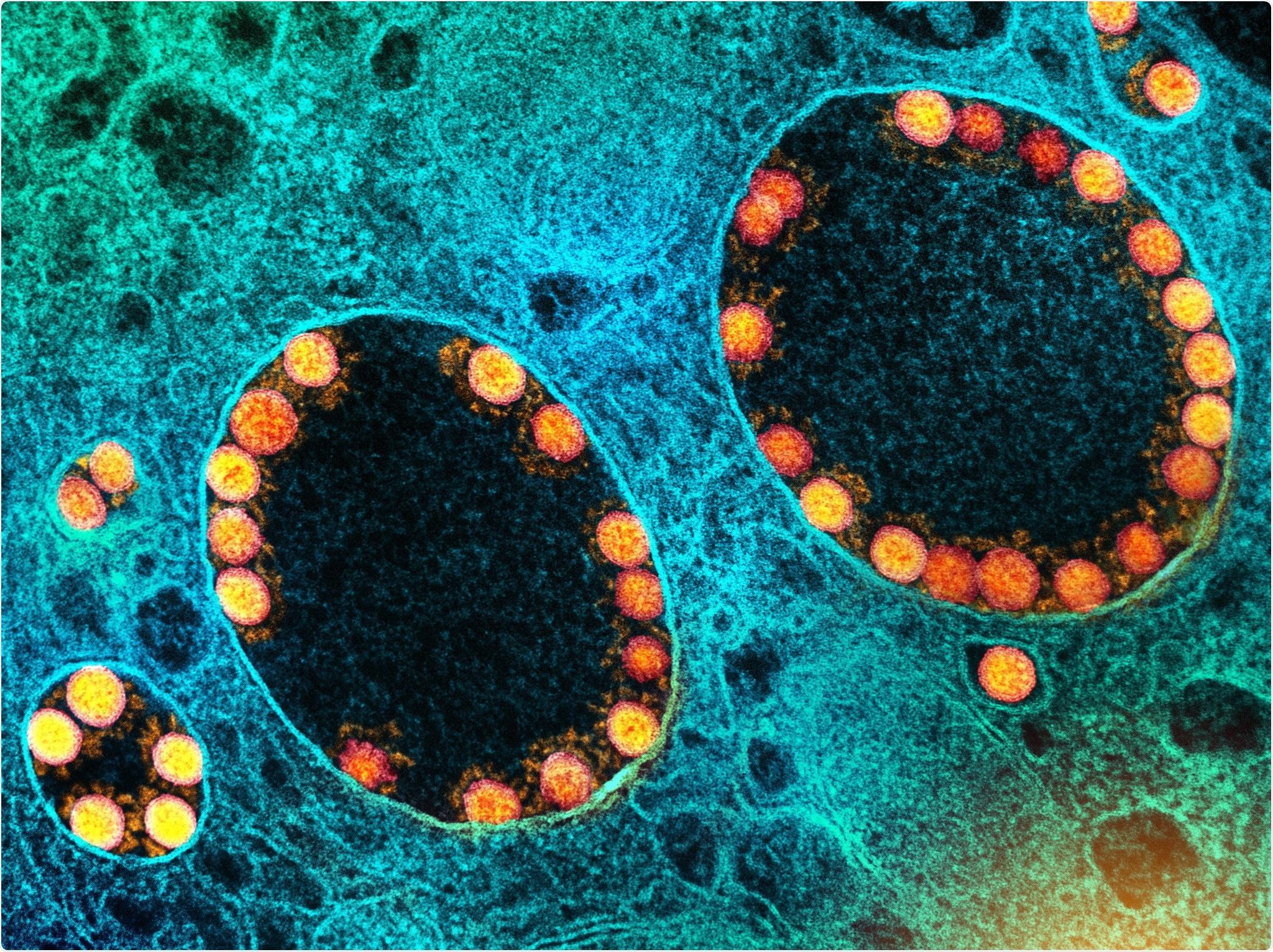 Study: Humoral immune responses against seasonal coronaviruses predict efficiency of SARS-CoV-2 spike targeting, FcγR activation, and corresponding COVID-19 disease severity. Image Credit: NIAID
