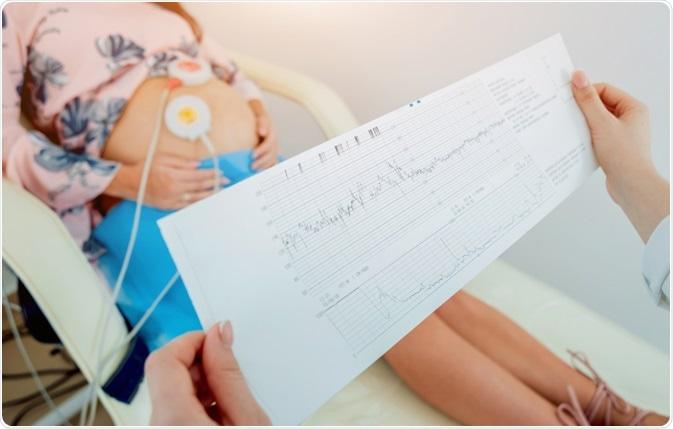Pregnant woman undergoing electrocardiogram