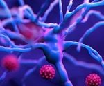 German study finds lack of association between SARS-CoV-2 infection and neuroaxonal damage