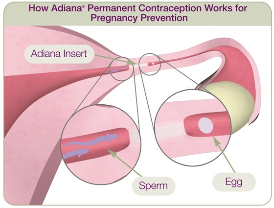 A tiny, soft insert is placed in each fallopian tube right where a low level of energy was applied. The tissue grows in and around the Adiana inserts which completely and permanently blocks the fallopian tubes to prevent pregnancy.