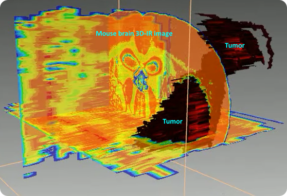 """3D reconstruction of the tumor based on lipid/protein ratio. The tumor is presenting higher amount of proteins while brain is a """"fatty"""" organ, thus making this ratio significantly different between tumor and healthy brain tissues."""