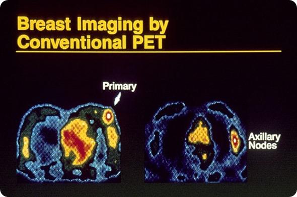 Breast imaging using pet