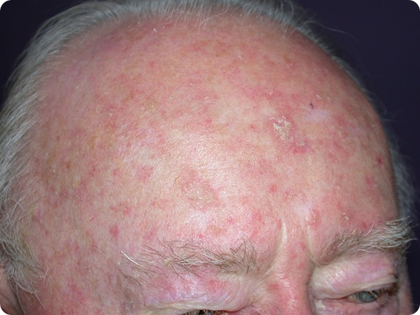 Actinic keratosis on the scalp of a male