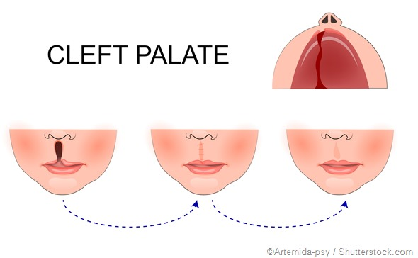 Cleft palate illustration - Artemida-psy