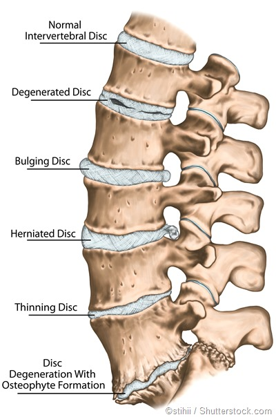 Disc problems spine