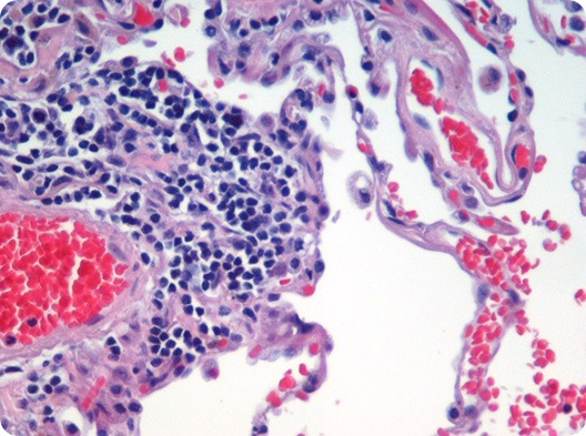 Image is of H&E (haematoxylin and eosin) stained lung tissue sample taken from an end-stage emphysema patient. Cell nuclei are blue-purple, red blood cells are red, other cell bodies and extracellular material are pink, and air spaces are white. Source: