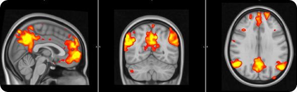 Fibro cervello 2