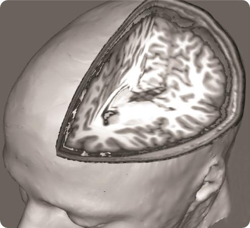 Fibro cervello 3
