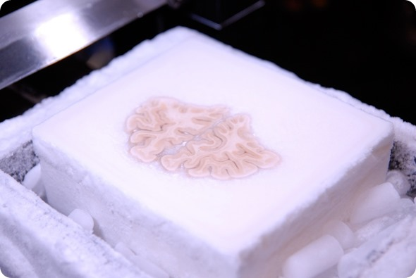 Image of the frozen brain at the level of the frontal lobes during the cutting procedure.