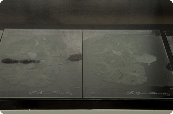 Tissue sections mounted on glass slides before staining