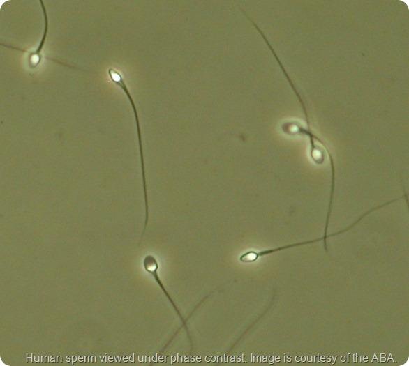 Linkam-image-of-sperm