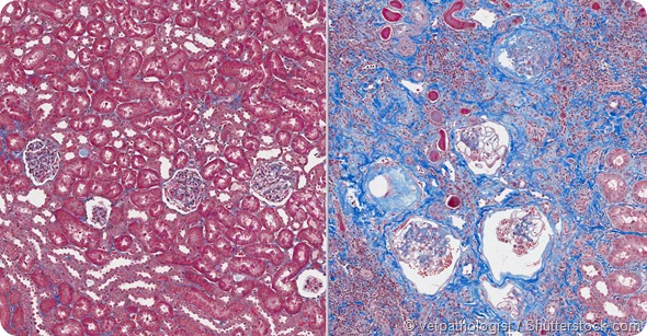 Normal Kidney (left) and Abnormal Kidney (renal failure) showing scarring (blue)