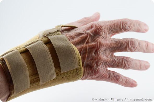 Cinta de mão da artrite reumatóide