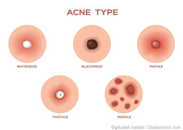 Types of acne illustration