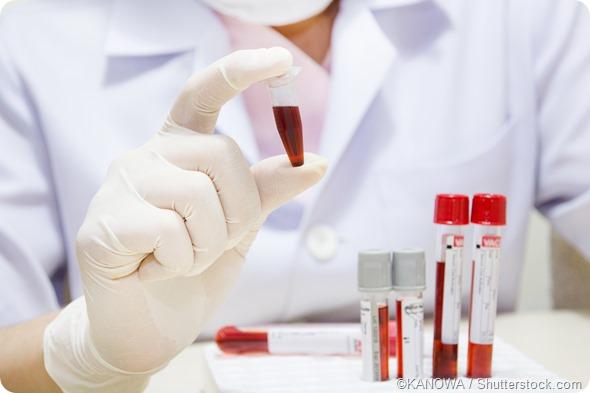blood sample analysis