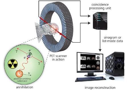 Principle of positron emission tomography