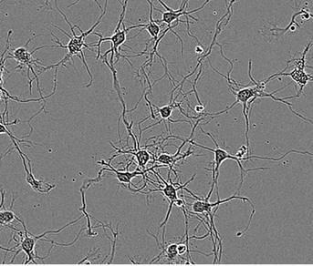 Segmentation masking of rat E18 cortical neurons