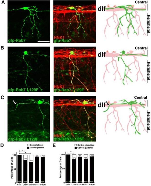"""Central axon guidance errors in sensory axons expressing CMT2b Rab7 mutants"""