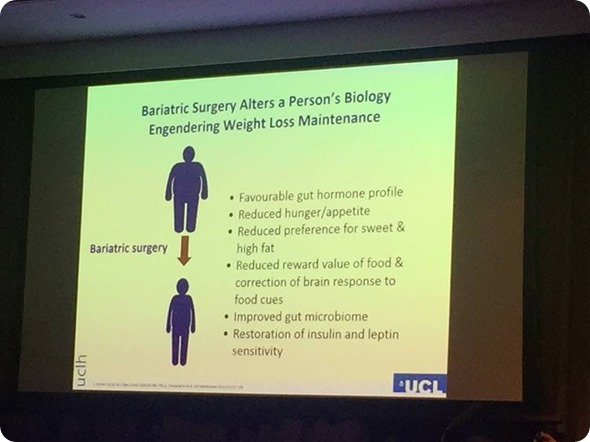 Cirugía bariatric de Batterham