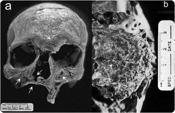La visualizzazione anteriore dimostra le lesioni corrosive bilaterali alla regione ed alla glabella supraorbital, l