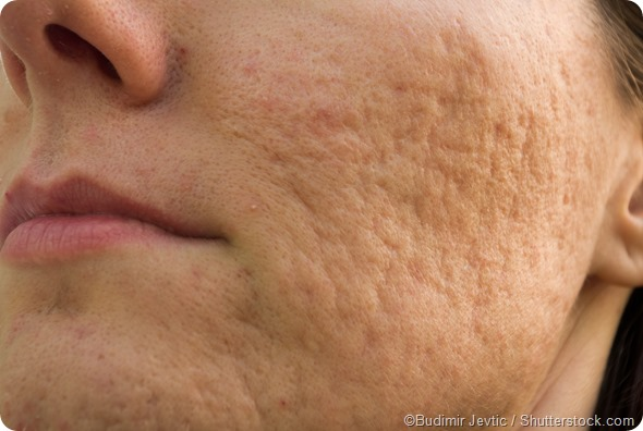 female severe acne scars