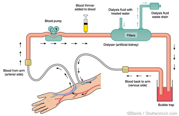 hemodialysis illustration