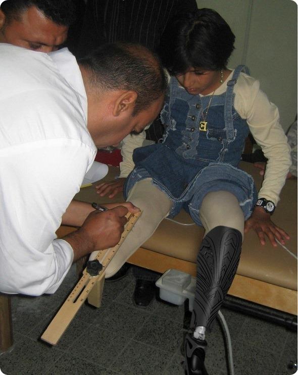 prosthetic2