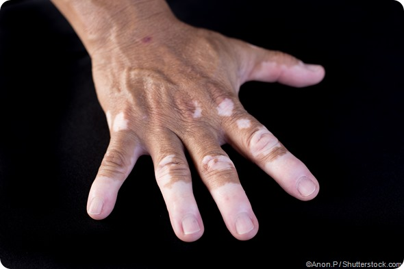 vitiligo disponível