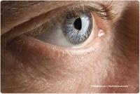 human papilloma virus ocular)