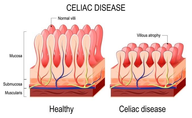موارد مصرف گلوتن، بیماری سلیاک، رژیم گلوتن