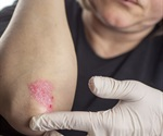 Compound derived from immune cells treats psoriasis in mice