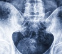 CTs of core muscle may help identify optimal treatments for older patients with hip fractures