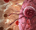 Nanoscopic changes to pancreatic cells reveal cancer