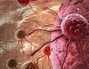 Researchers reveal how certain nerves sustain prostate cancer growth