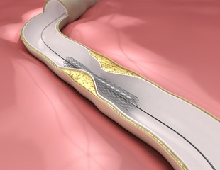New study shows ways to improve patient care and reduce costs linked to coronary angioplasty