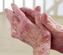 New study examines how the brain plays role in rheumatoid arthritis inflammation