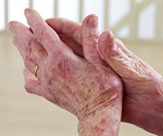 Rheumatoid arthritis results from a combination of genetic susceptibility and environmental triggers