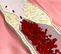 Higher free thyroxine levels may be linked to greater risk of atherosclerotic diseases