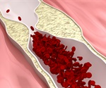 Endogenous peptide inhibits atherosclerosis by reducing cholesterol levels