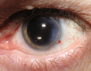 NEI-funded research aims to prevent or reverse progression of cataracts