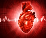 Peripheral arteries may be useful for assessing heart disease risk, study finds