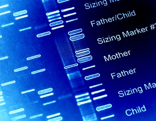 Researchers identify new genetic variants that cause heart disease in infants