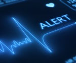 Echocardiography may aid in patient selection for TMVR