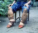 Portable scanner can measure limb disfigurement easily in patients with elephantiasis