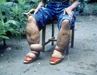 WHO revise treatment guidelines of lymphatic filariasis due to CWRU-led study