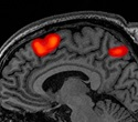 Newborn brain can distinguish between different kinds of caresses