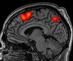 Brain imaging study reveals 'hot spot' for cue-reactivity in substance users