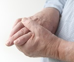 Study finds no association between gout and increased fracture risk